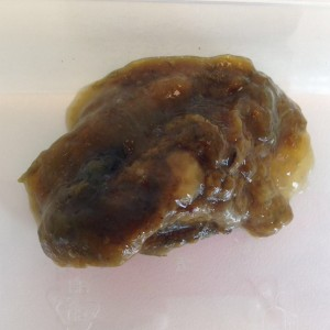 wat eten bij diarree